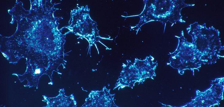 Células Cancerosas